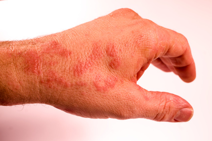 linke Hand mit Neurodermitis-Anzeichen