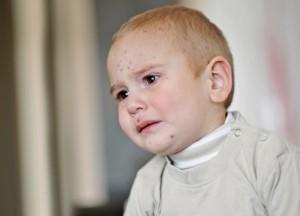 Kind mit Hautkrankheit