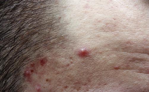 Artikelgebend sind Pflegetipps gegen Akne Pickel.